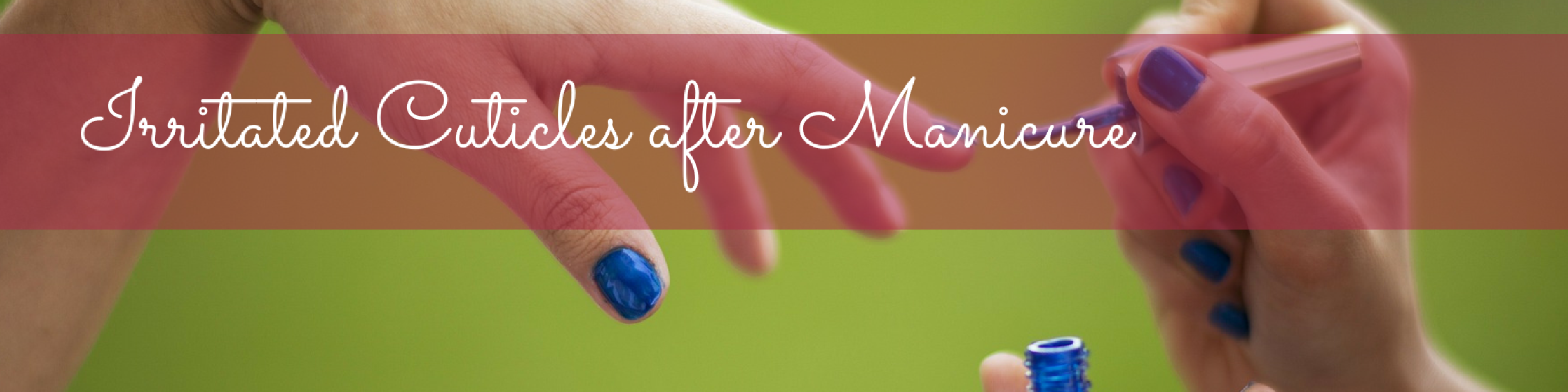Irritated Cuticles after Manicure